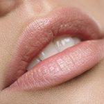 Rimodellamento labbra con acido ialuronico