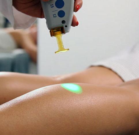 Laserterapia e tecnologie