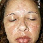 la Malattia della pelle: il Melasma