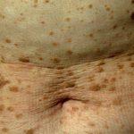 malattia della pelle: la Cheratosi Seborroica
